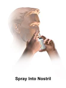 Nasal spray - Wikipedia